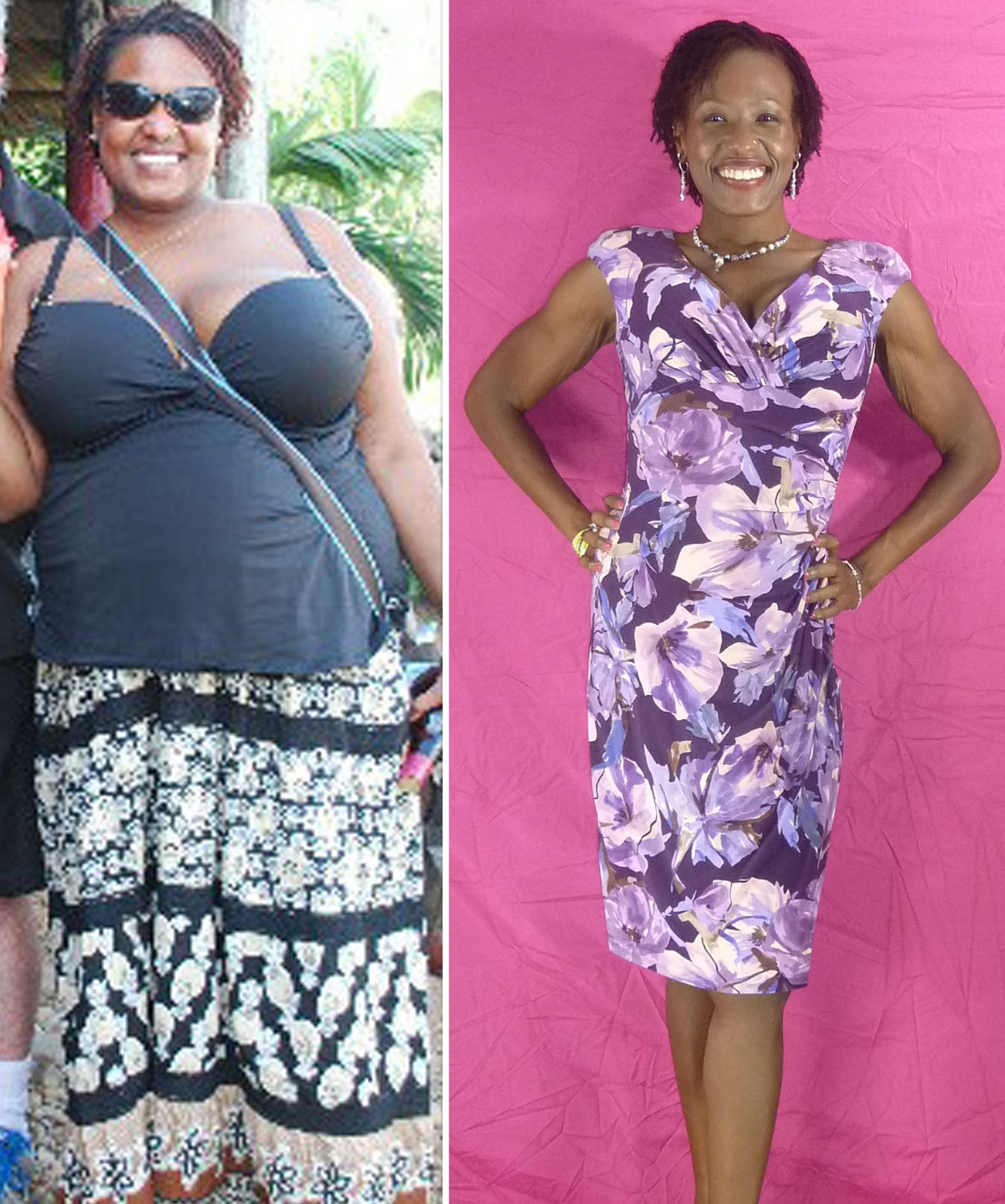 Percentage of weight loss after gastric bypass photo 6